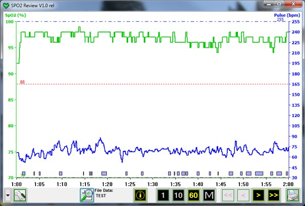 Pulse Oximeter Software